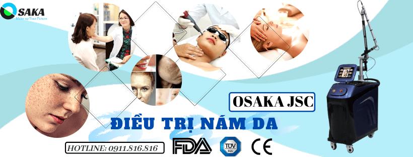 máy điều trị nám da, trị sắc tố thiết bị thẩm mỹ sài gòn