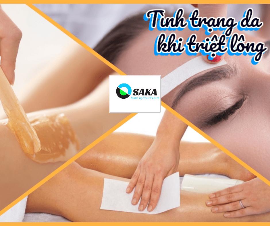 Triệt lông vĩnh viễn phụ thuộc vào tình trạng da