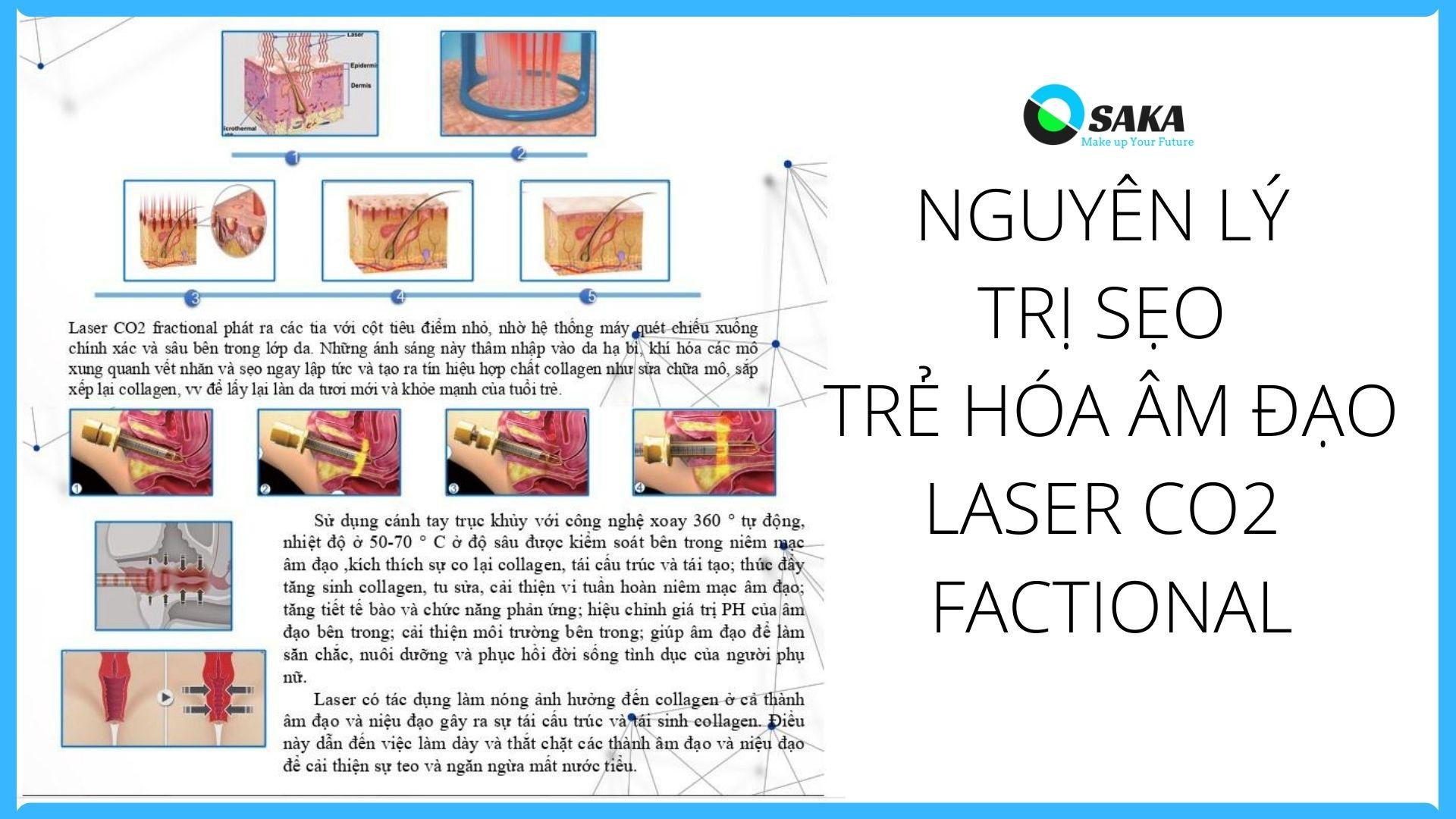 nguyên lý hoạt động máy trị sẹo laser co2 fractional