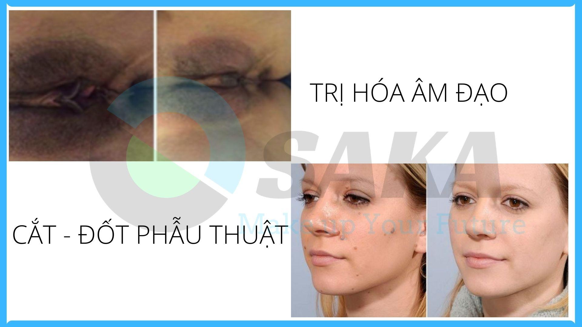 điều trị âm đạo, cắt đốt phẩu thuật trên máy trị sẹo laser co2 fractional