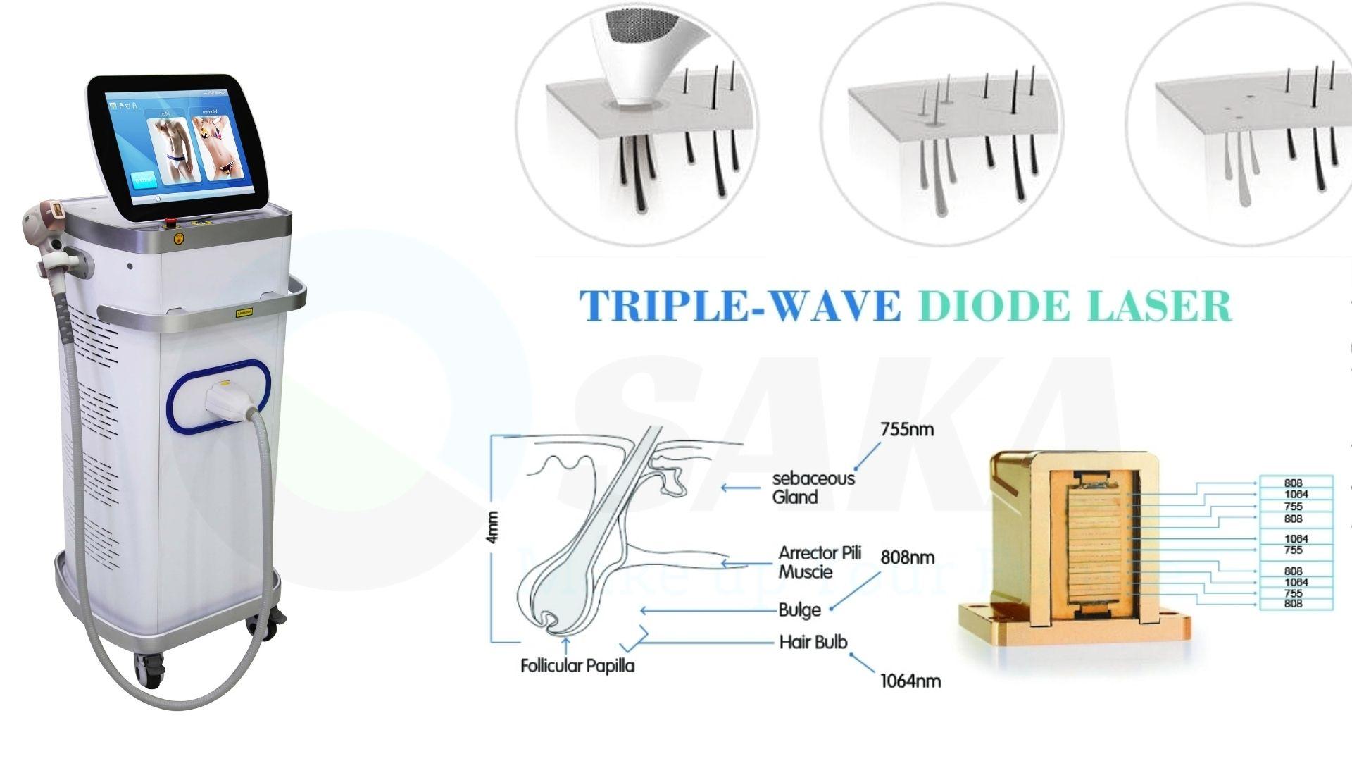 Máy triệt lông diode laser fg2000d