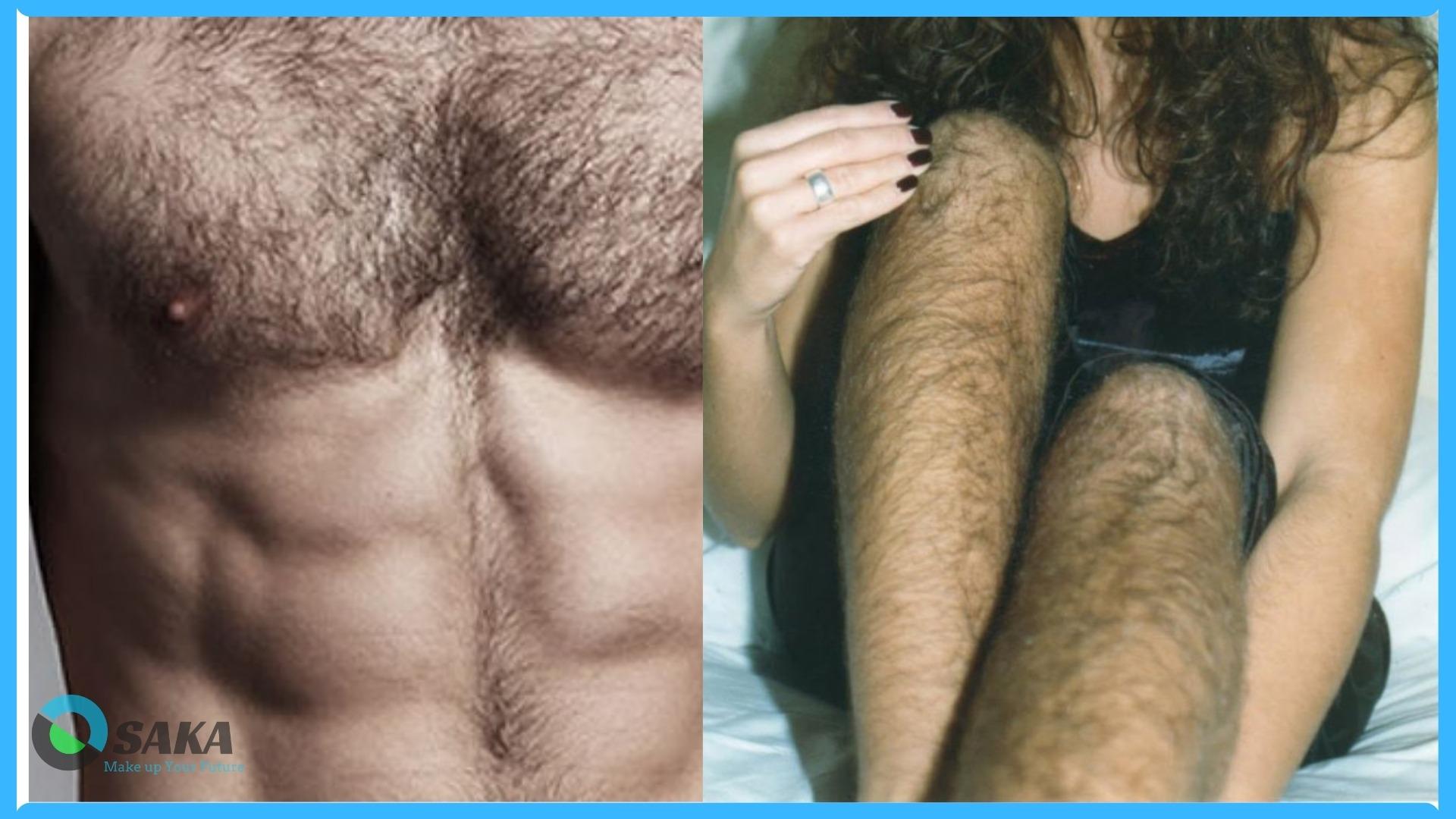 tình trạng nhiều lông ở nam nữ và cách triệt lông