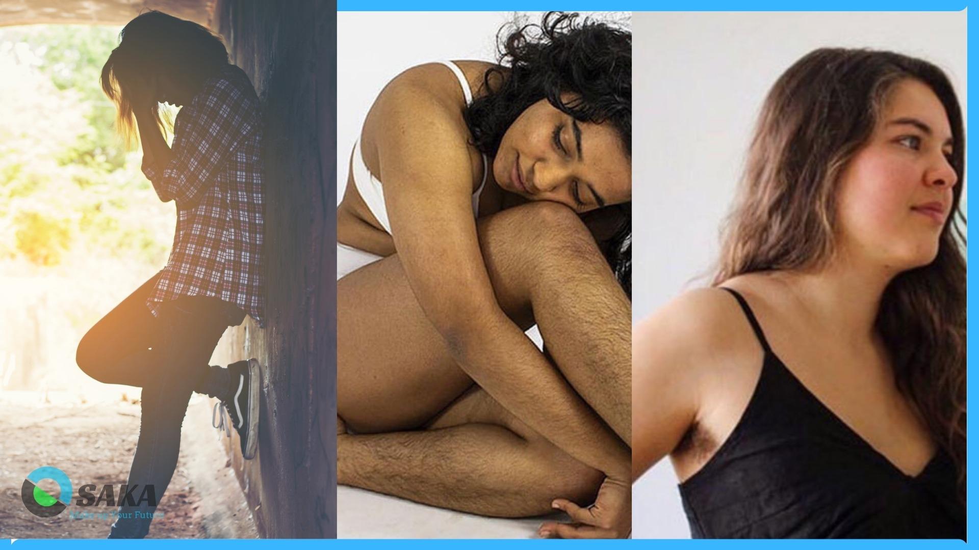 triệt lông cho người vấn đề nhiều lông do nội tiết tố cao