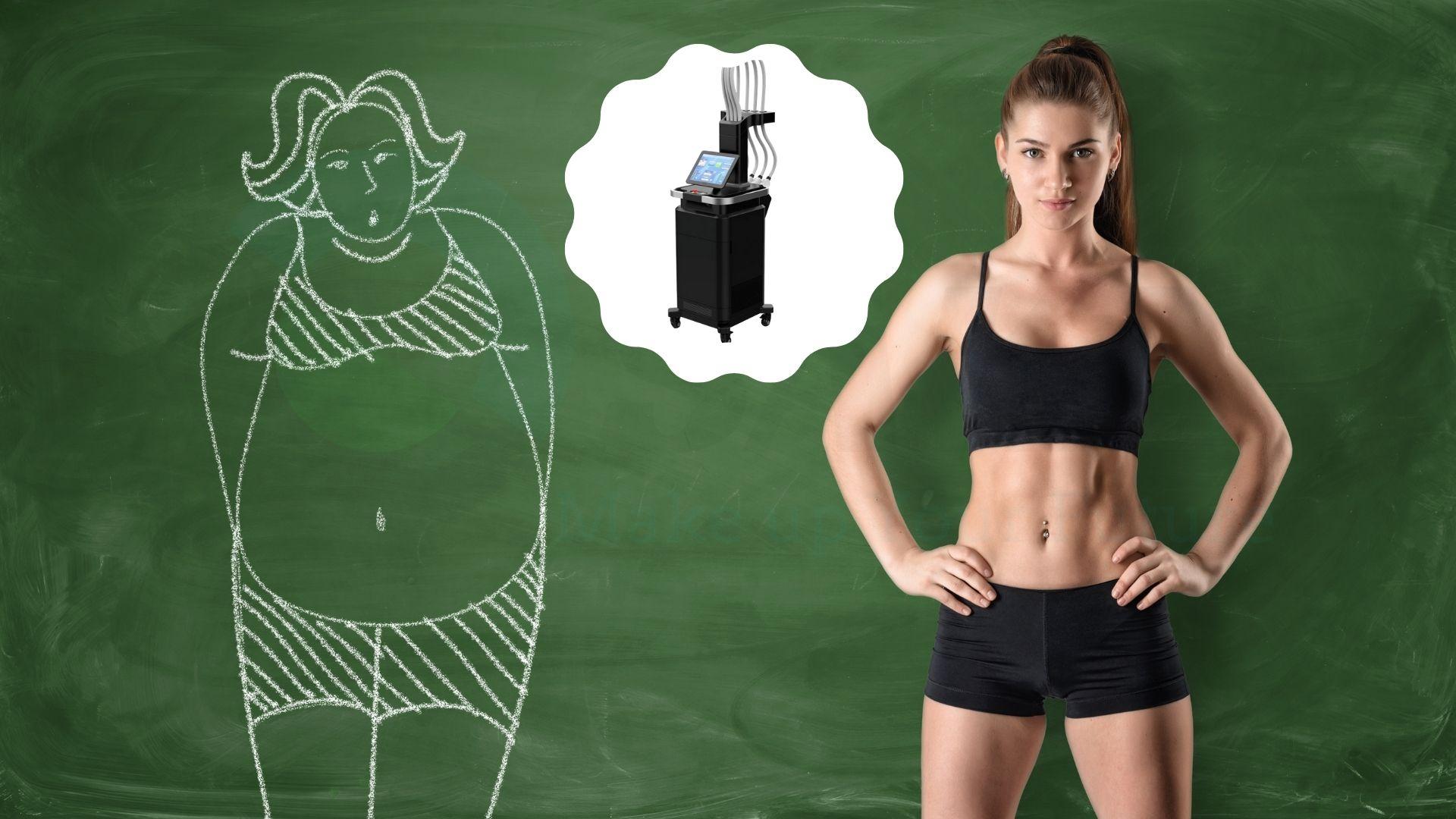 Điều trị béo với diode laser 1060nm