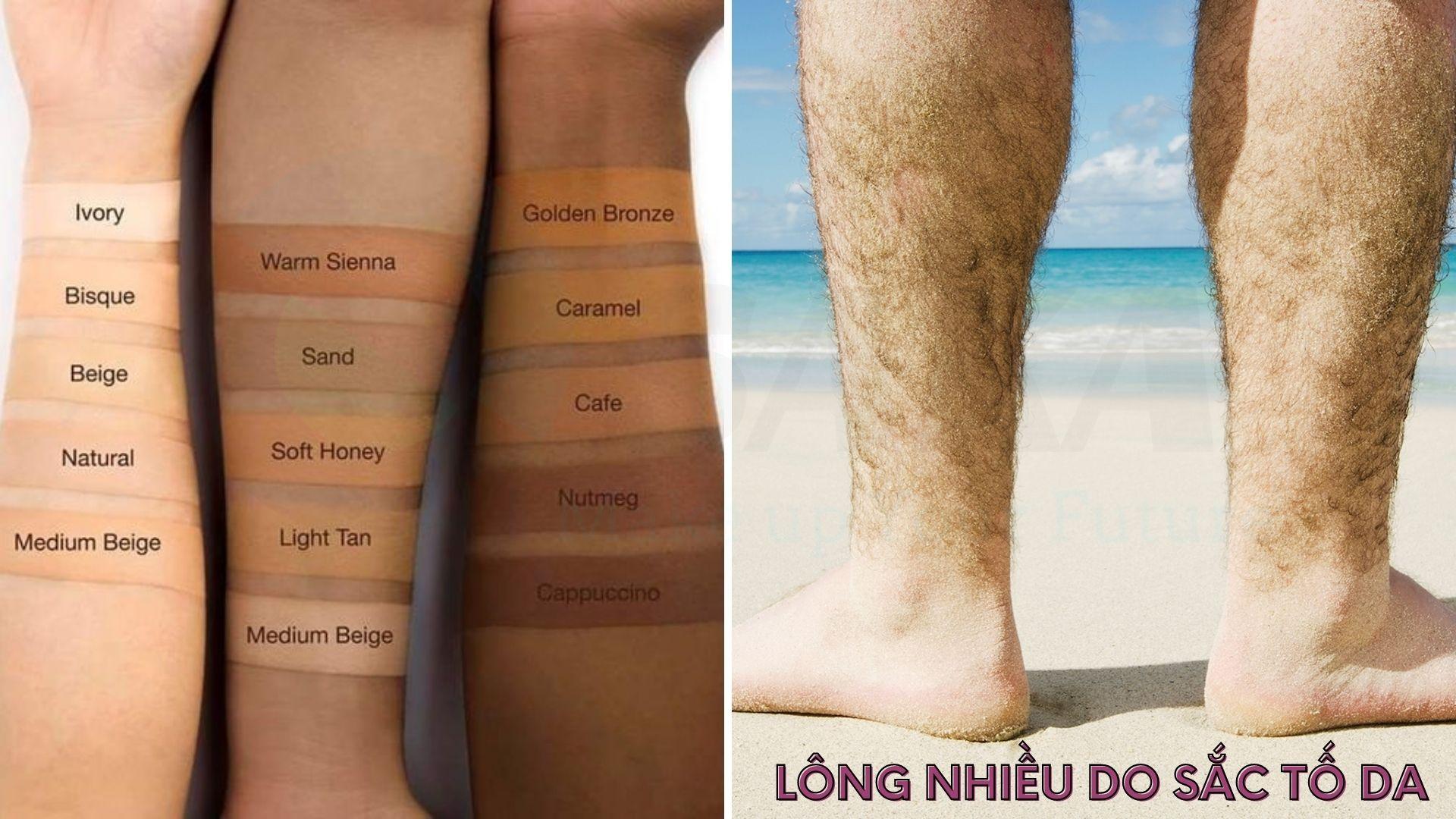 Rậm lông nhiều do sắc tố da