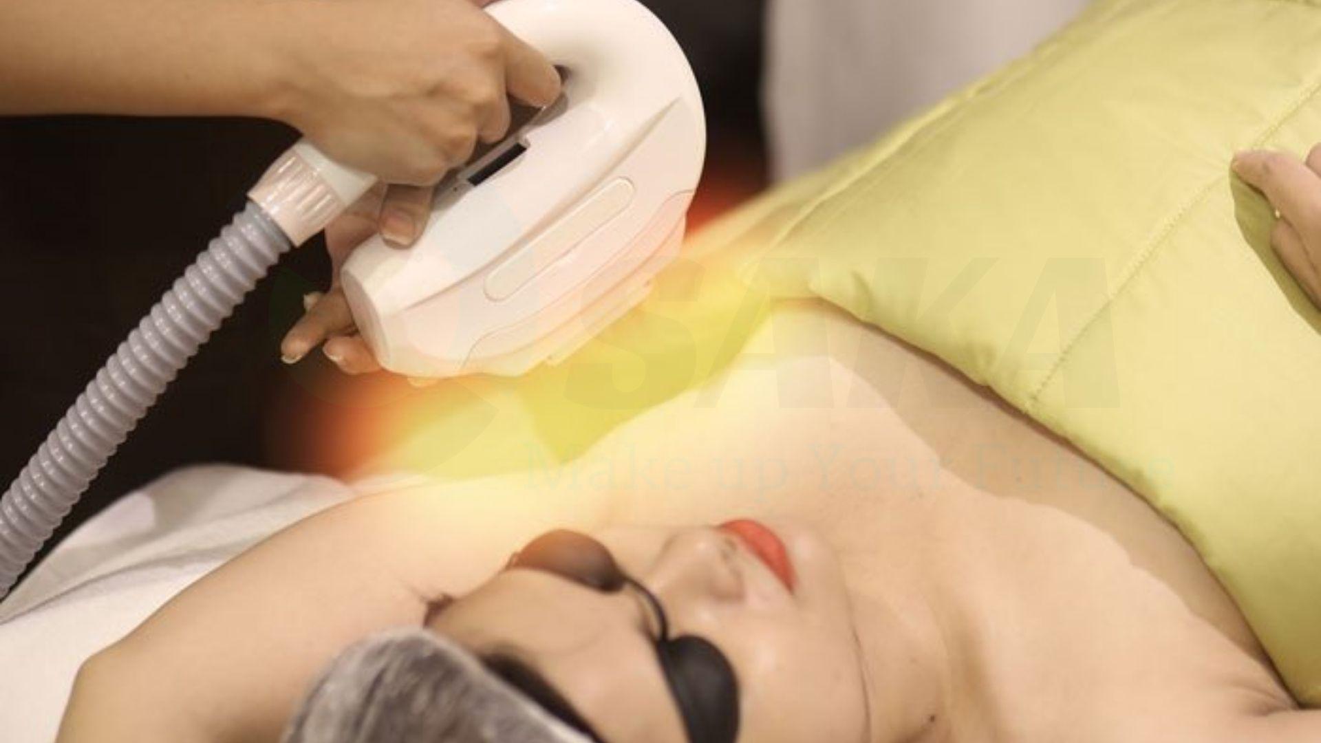Phương pháp triệt lông bằng laser