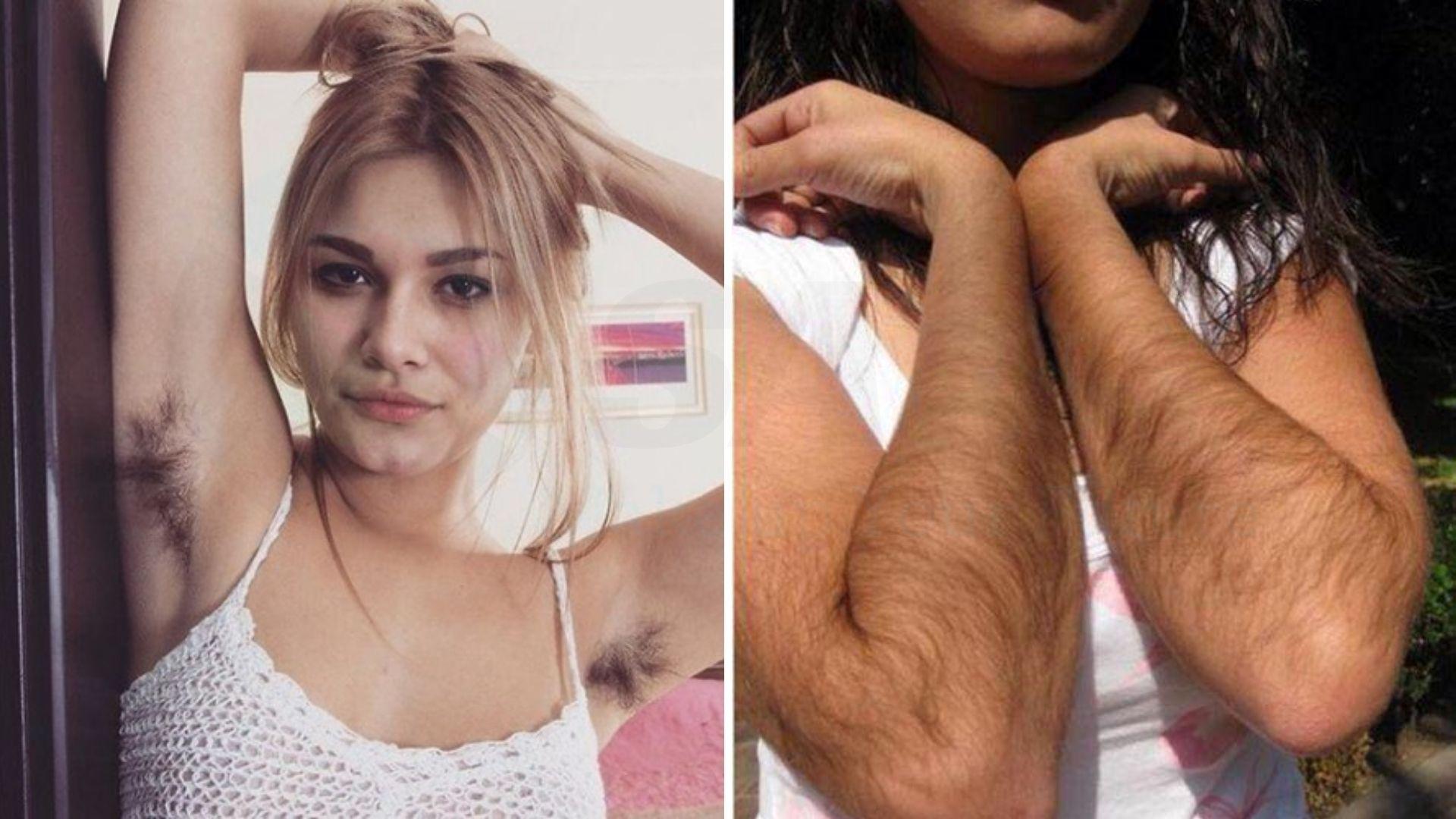 Tại sao phụ nữ mắc chứng lông nhiều