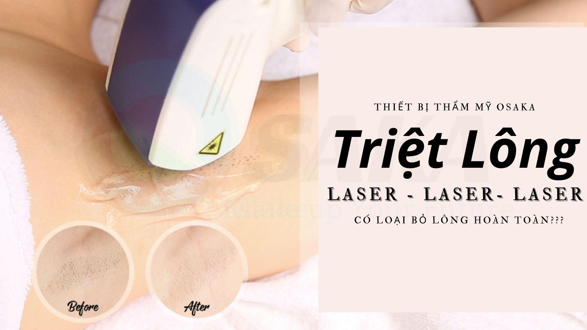 Triệt lông bằng laser