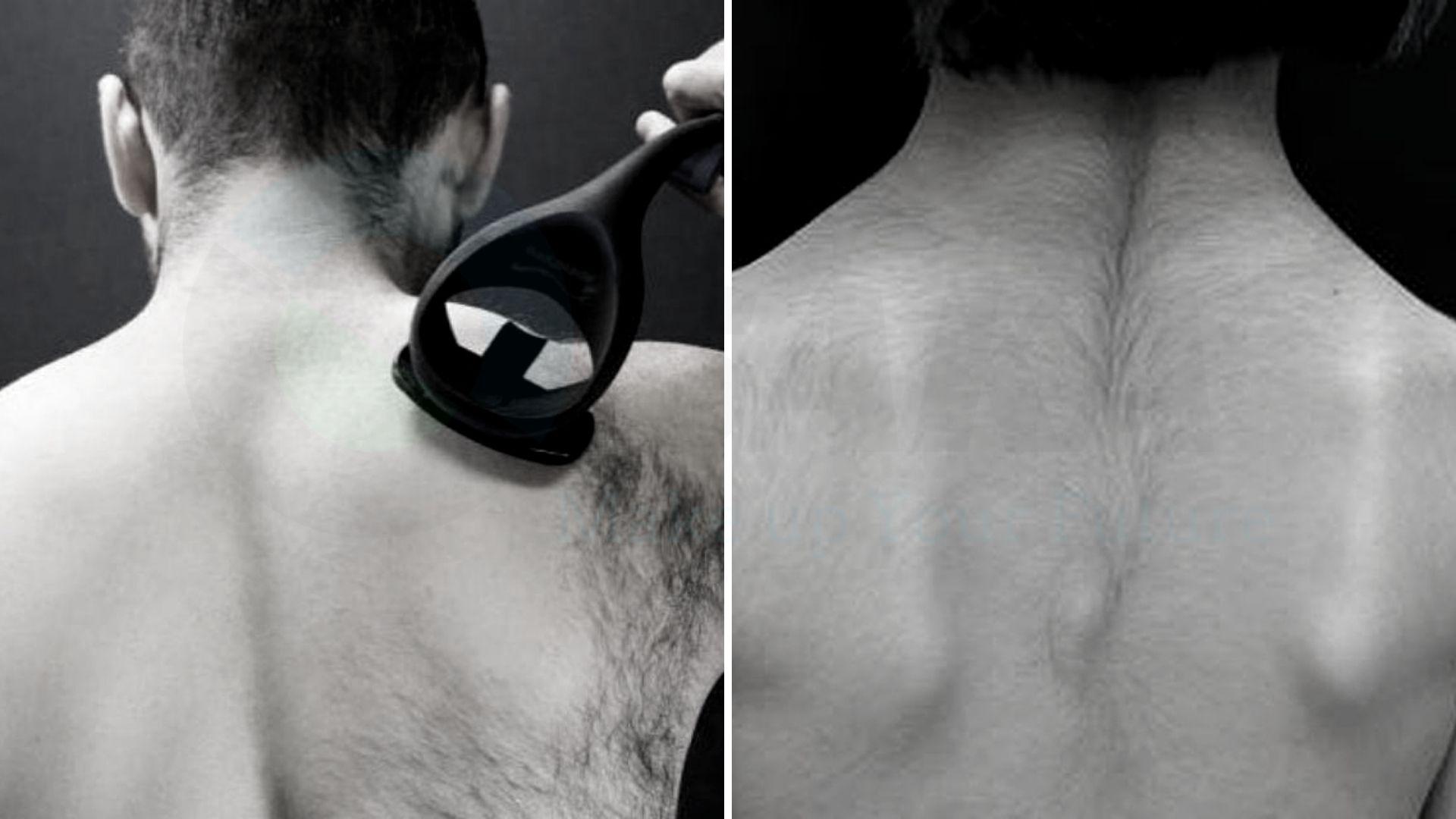Triệt rậm lông lưng nam nữ