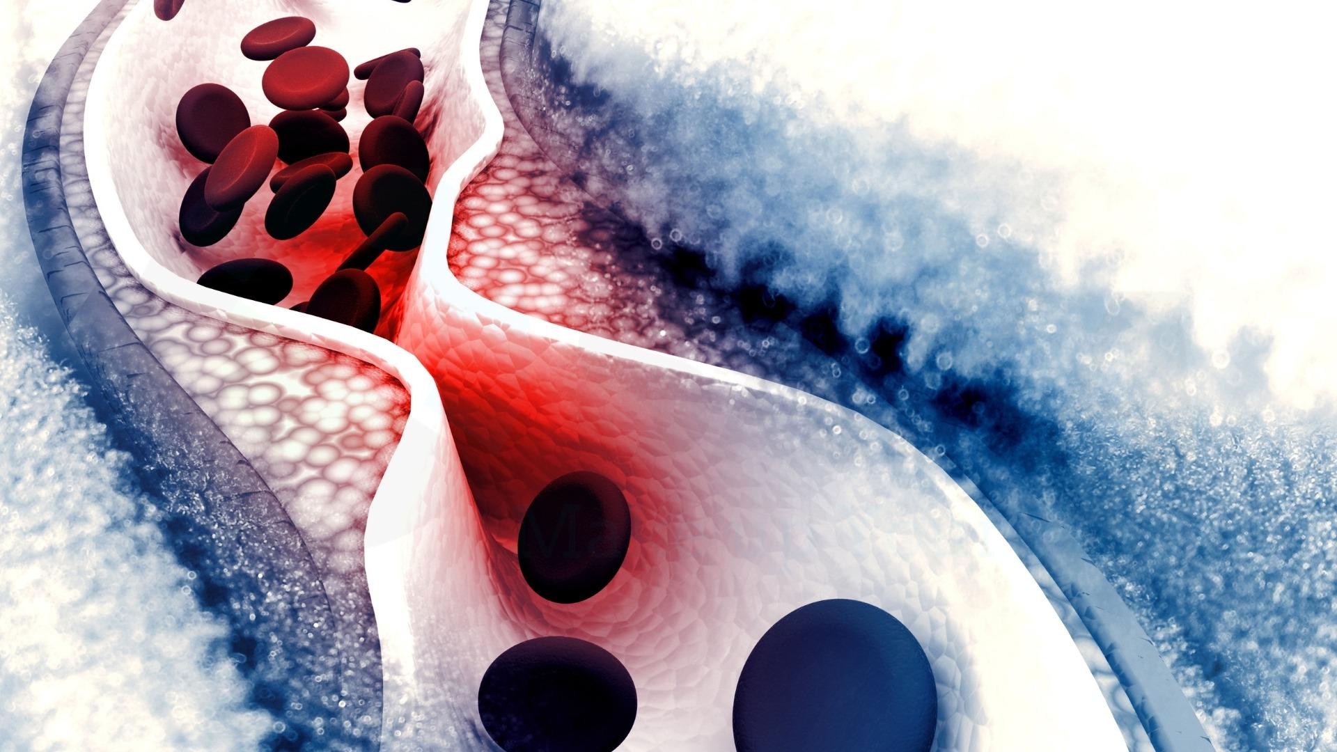 Bệnh sơ cung mạch máu