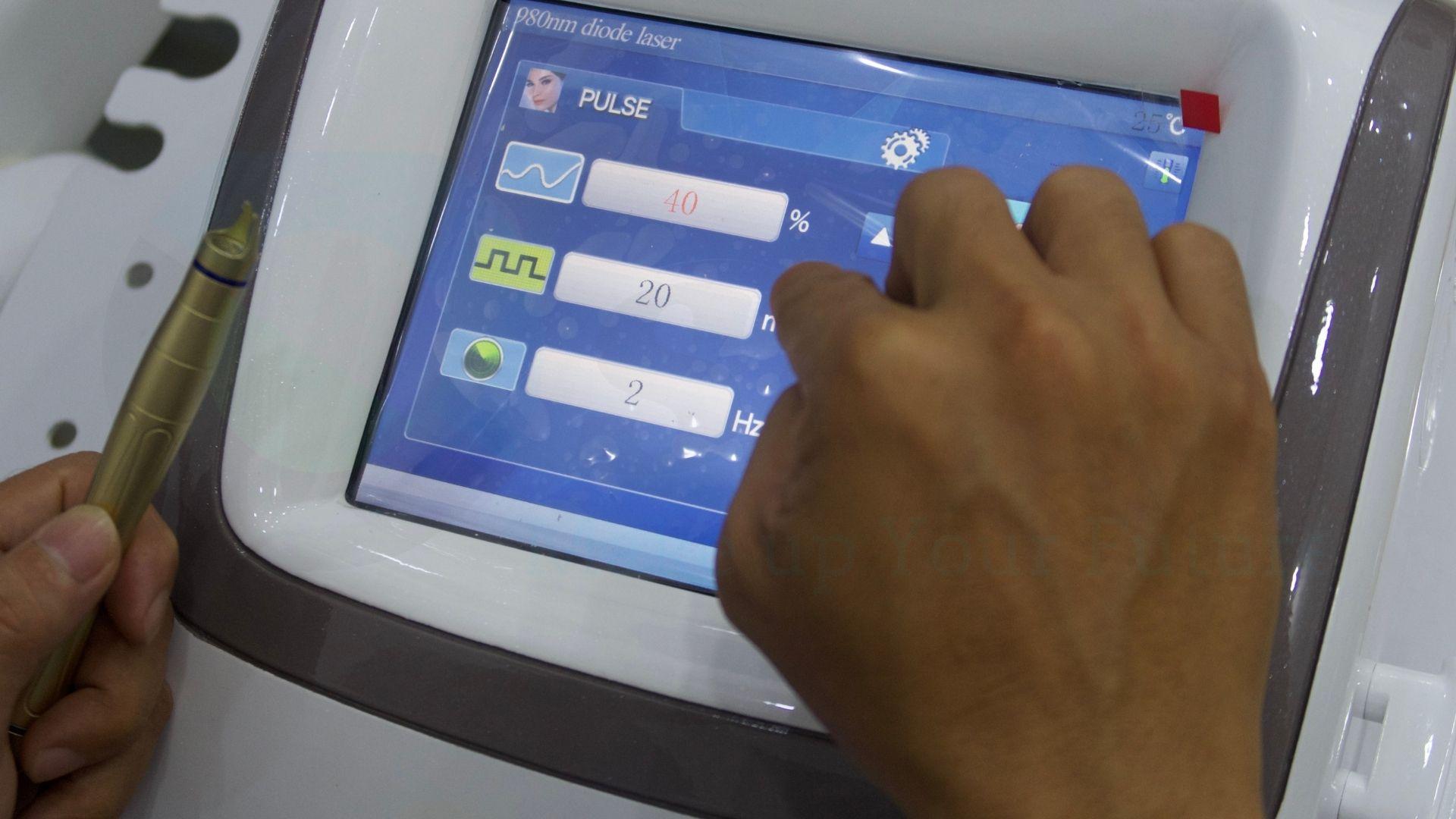 Các bước điều trị máy xóa mao mạch Diode Laser 980nm