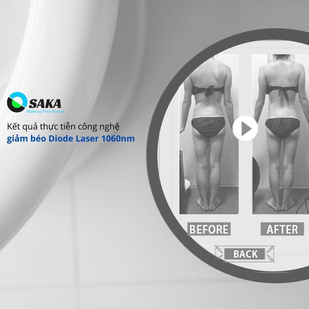 Công nghệ giảm béo Diode Laser 1060nm