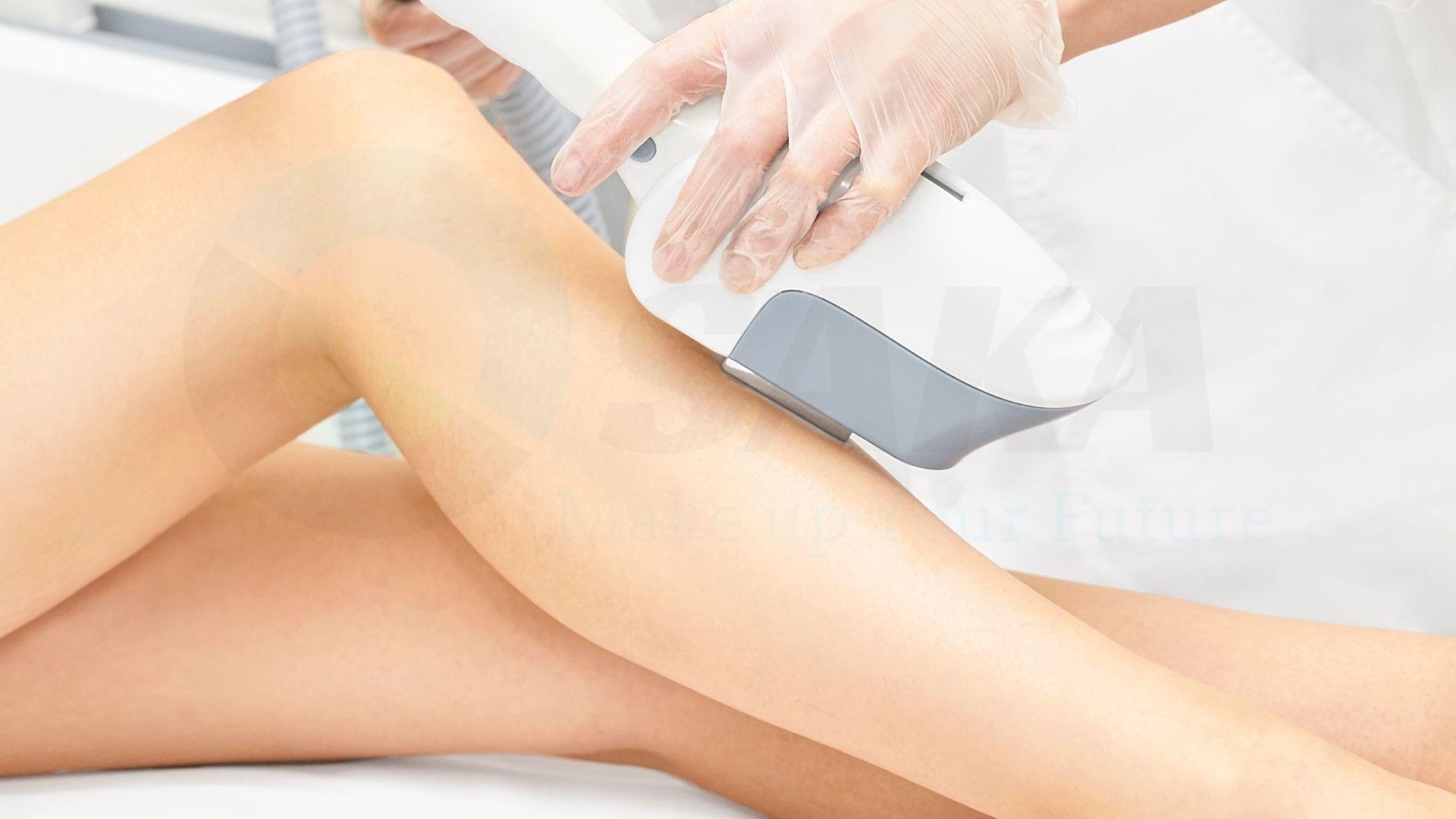 Công nghệ triệt lông chân chất lượng