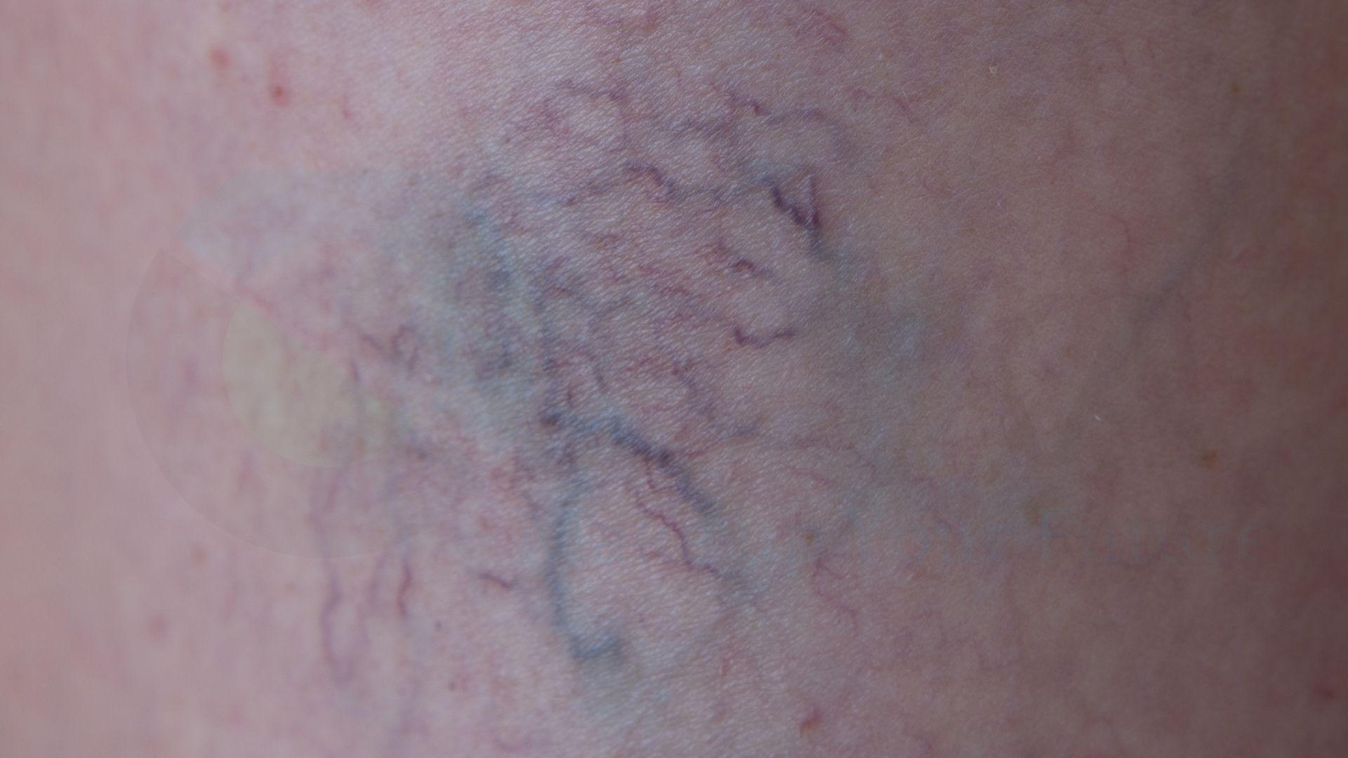 Giãn mạch máu chân thứ cấp