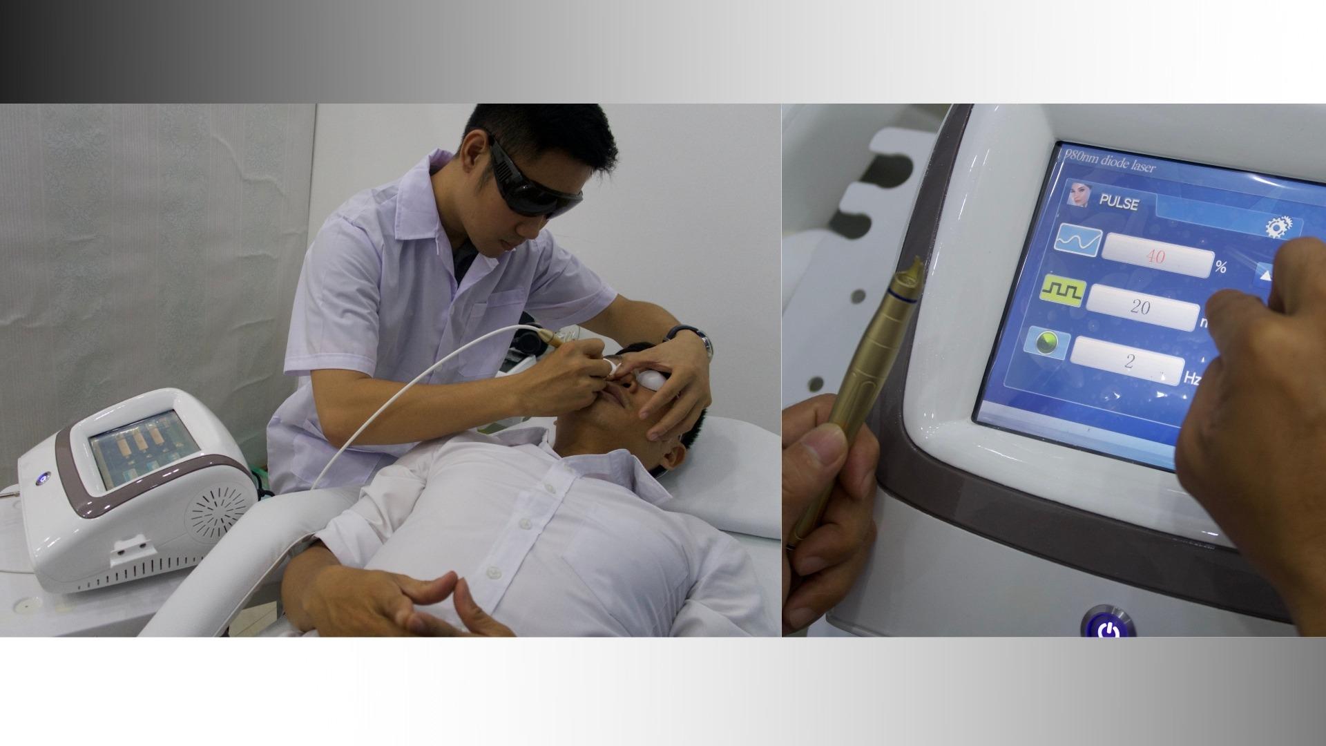 Máy điều trị mao mạch hiệu quả lần đầu tiên sử dụng