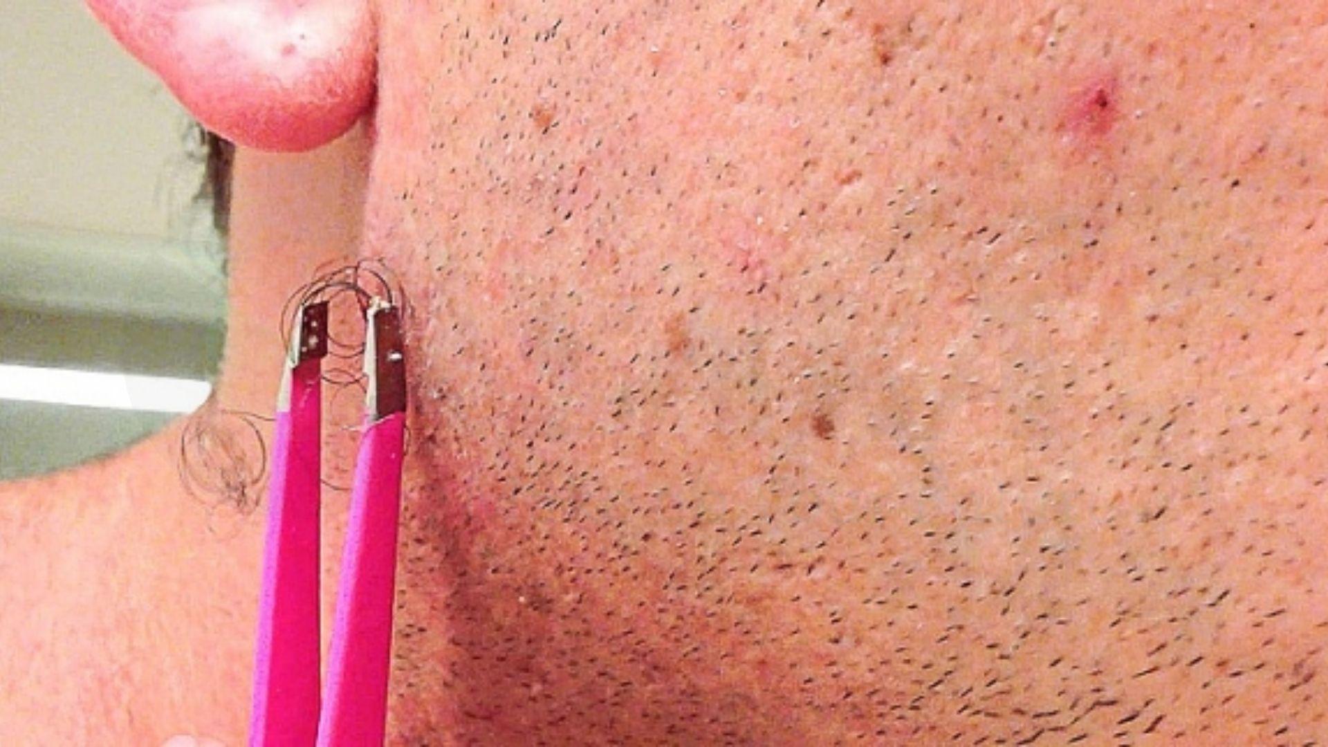 Nguyên nhân lông mọc ngược cần phải triệt lông
