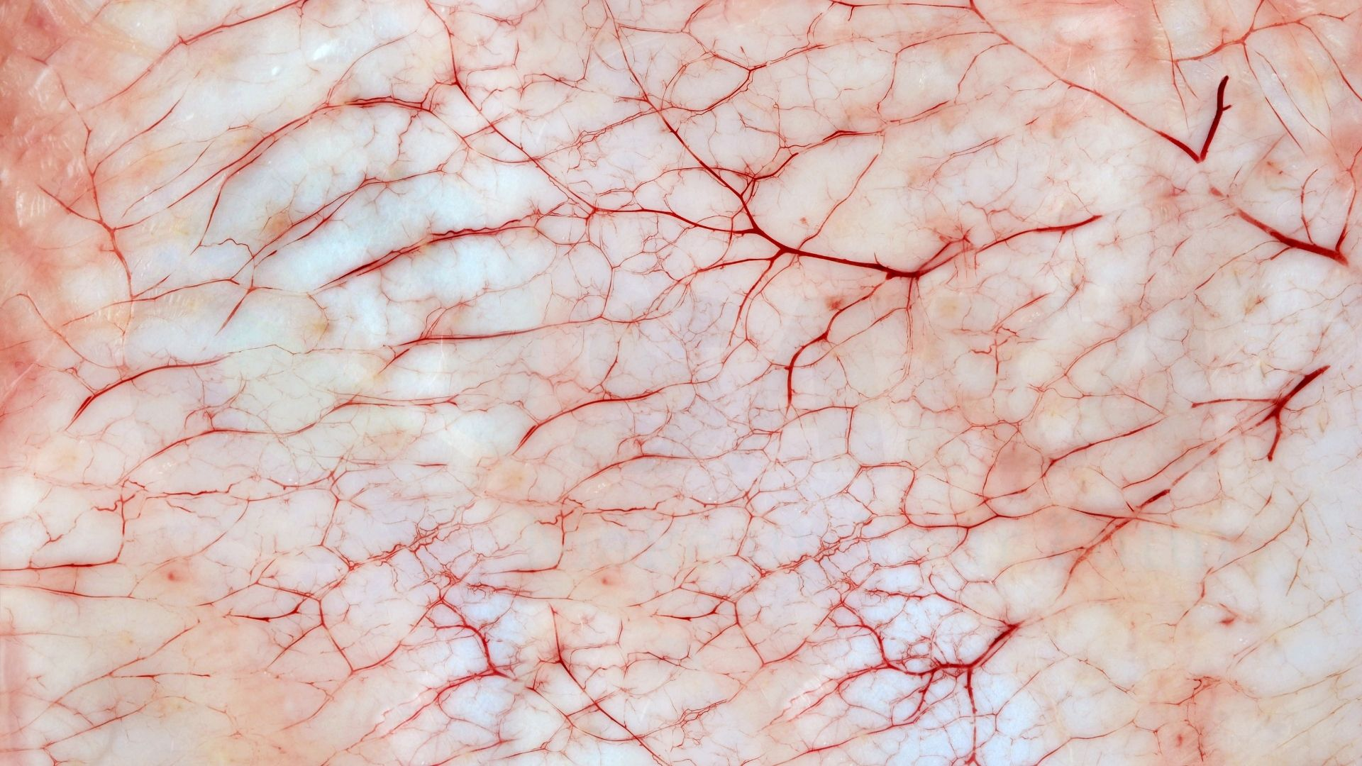 Vỡ mao mạch máu và những nghiên cứu về chúng