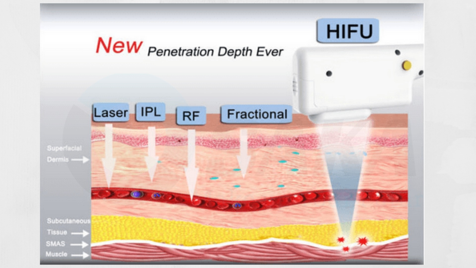 Cơ chế hoạt động máy nâng cơ HIFU
