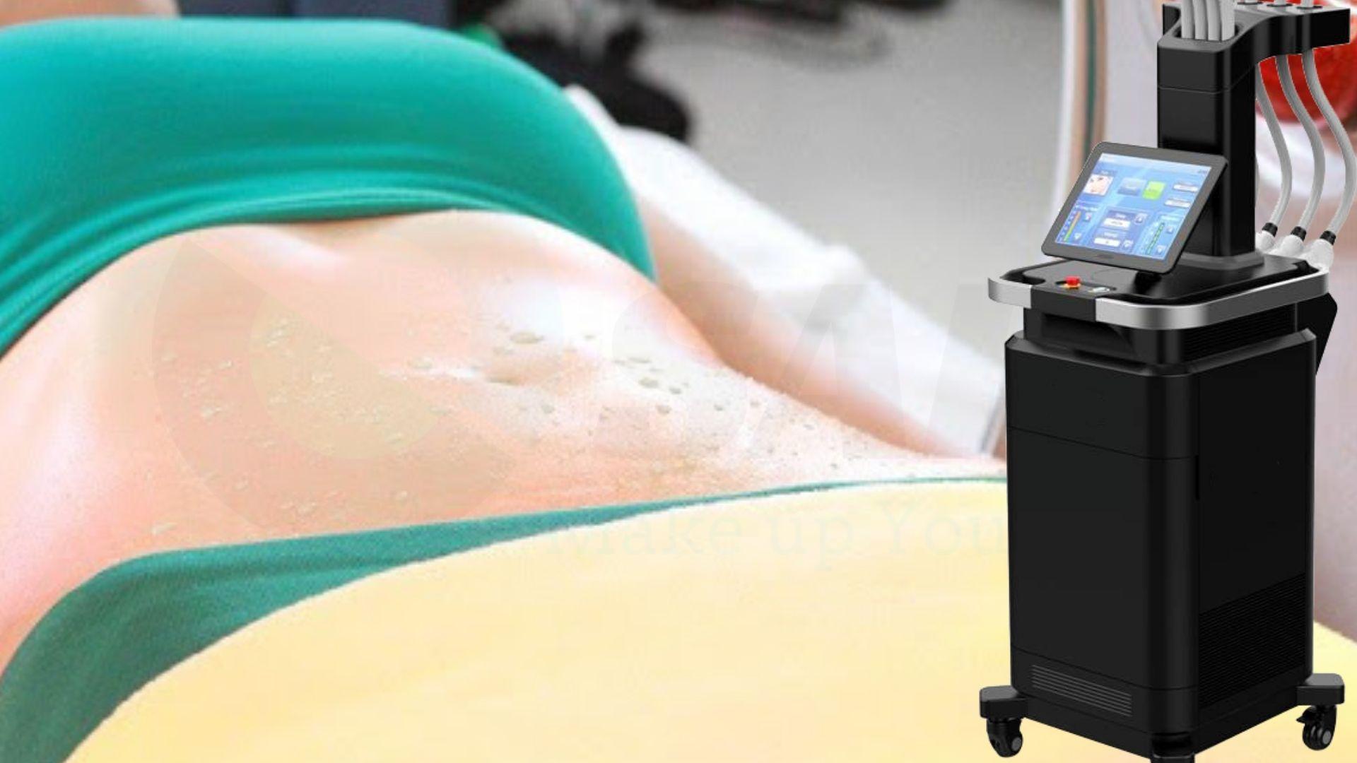 Công nghệ giảm béo Diode Laser