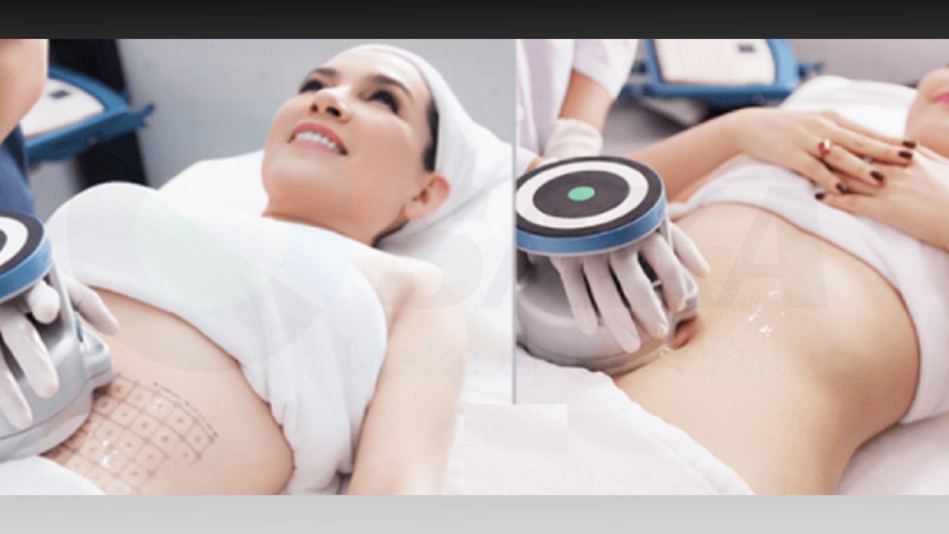 Công nghệ giảm béo hiện đại