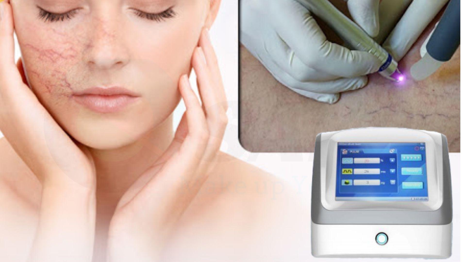 Điều trị giãn mao mạch máu bằng VR2015