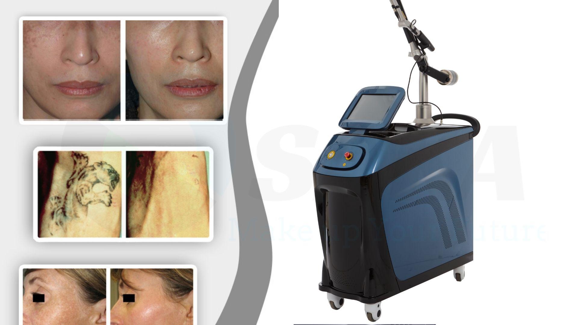 Giá máy điều trị sắc tố ND YAG