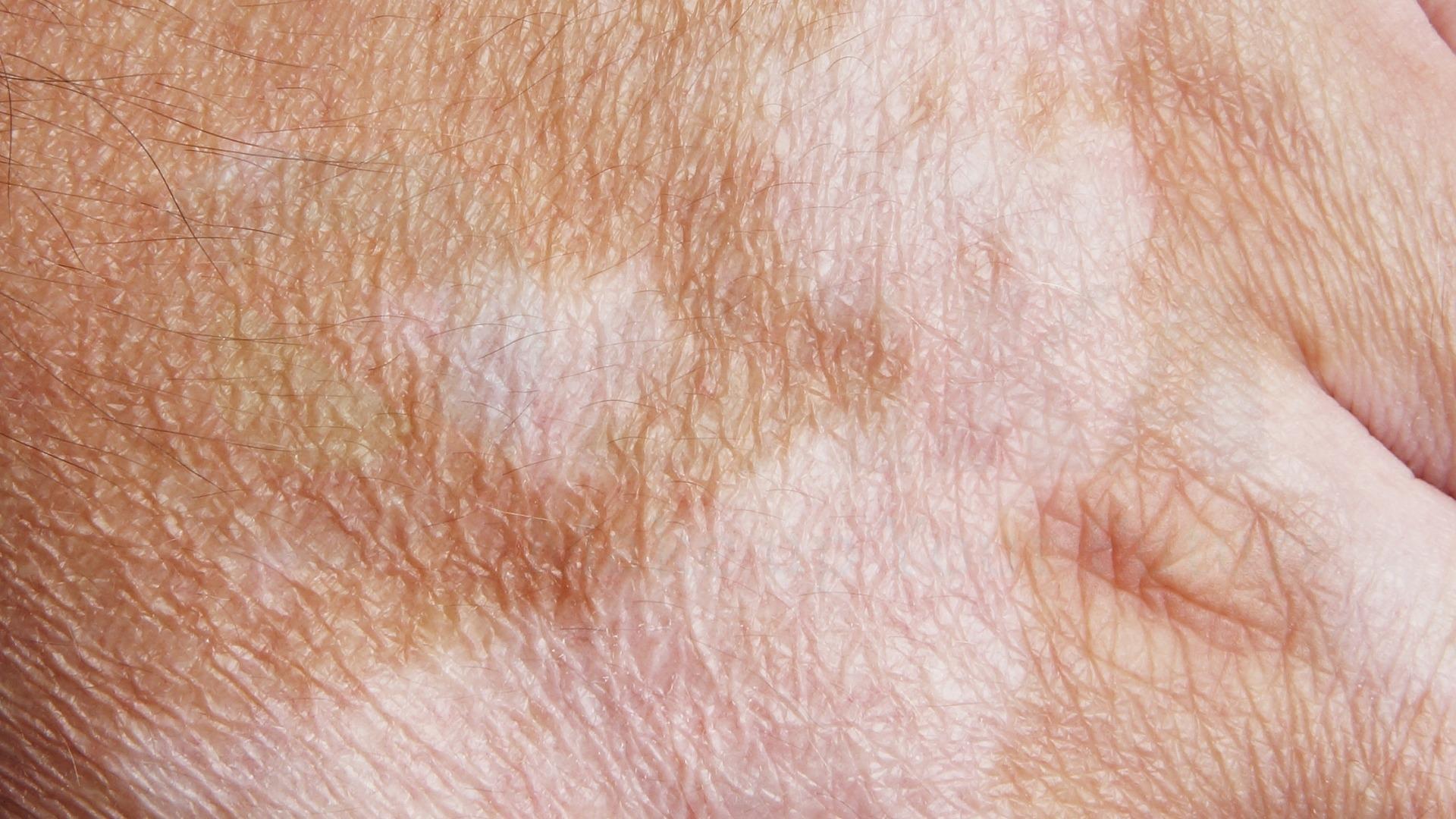 Mắc sắc tố da do rối loạn sắc tố