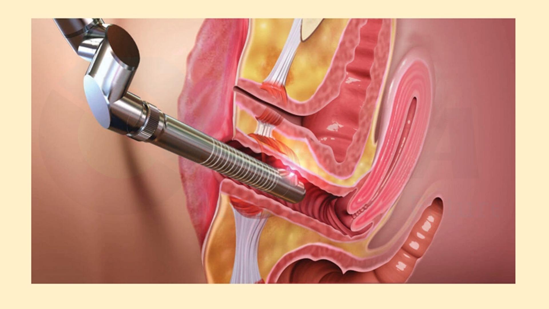 Nguyên lý hoạt động máy trẻ hóa âm đạo