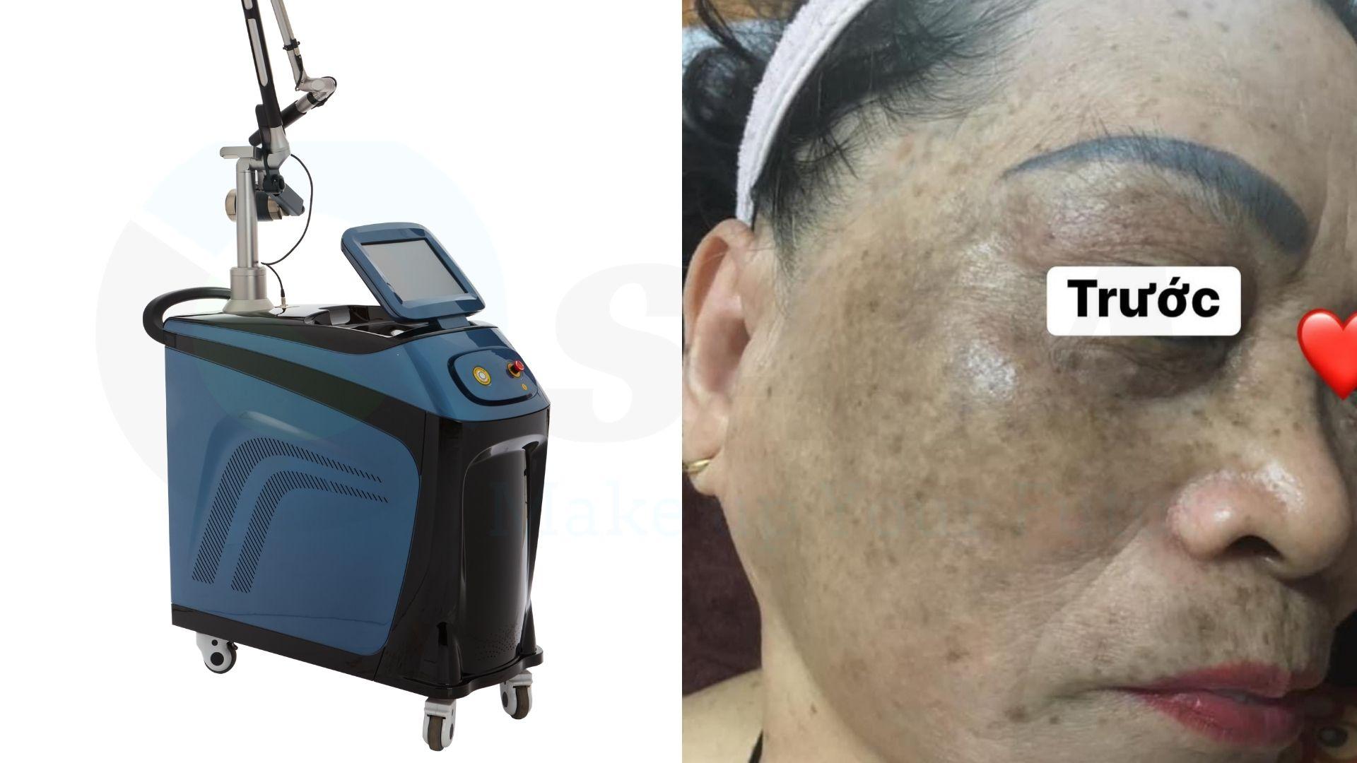 Sử dụng máy điều trị sắc tố không bị lỗi máy