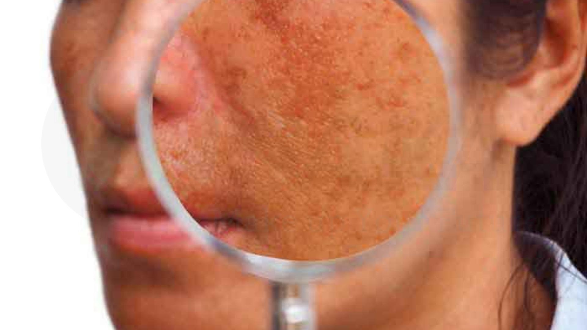 Tình trạng rối loạn sắc tố da