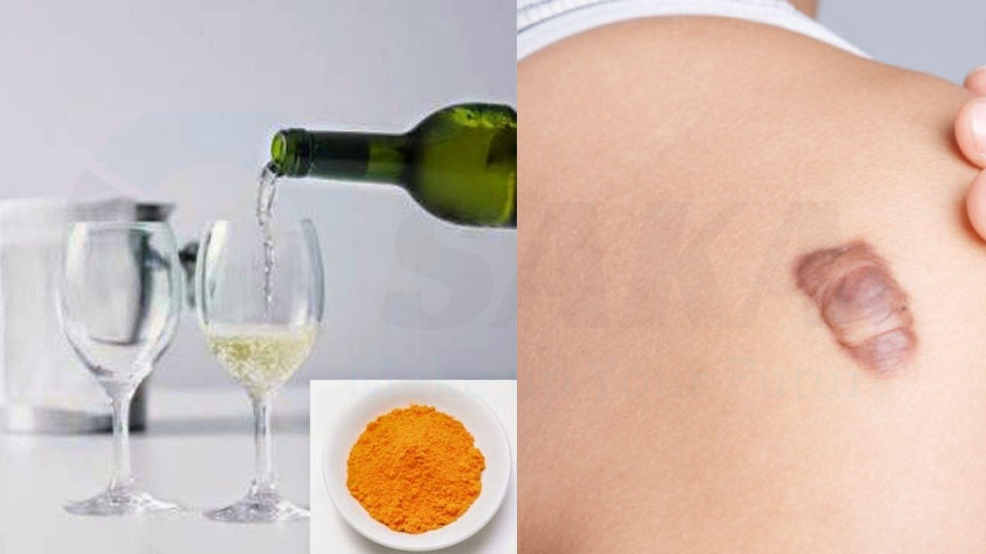 Cách trị sẹo bằng rượu và nghệ tươi