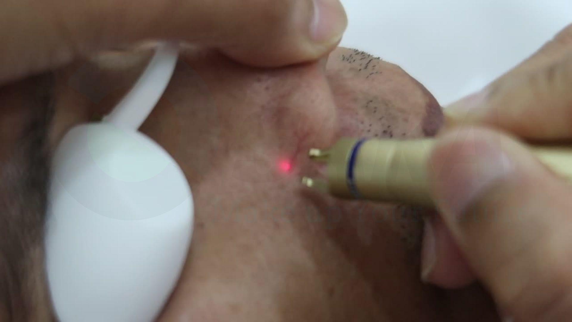 Công nghệ điều trị mao mạch máu
