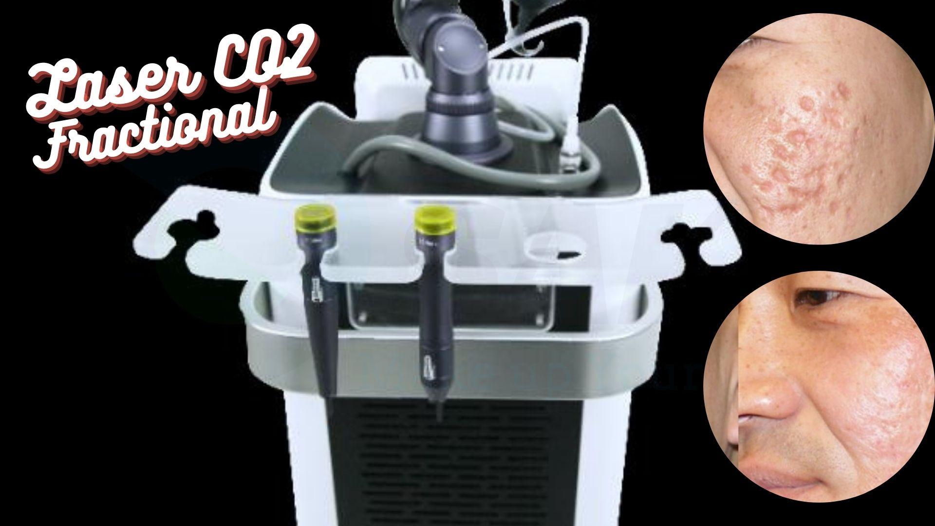 Công nghệ trị sẹo Laser CO2 Fractional