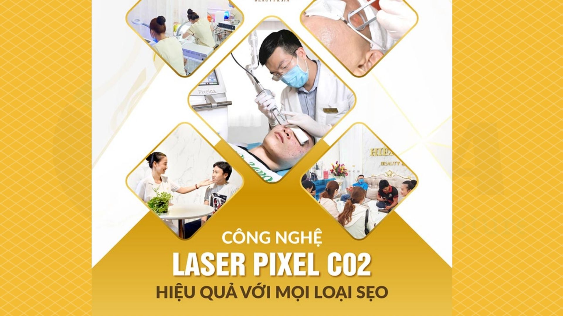 Đối tượng sử dụng Laser CO2 Fractional