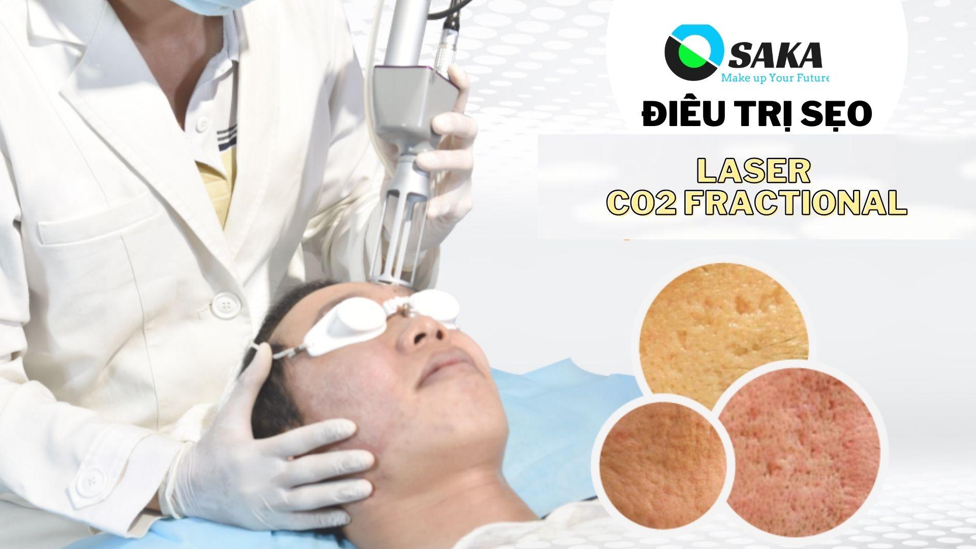 Hướng dẫn điều trị sẹo bằng Laser CO2 Fractional