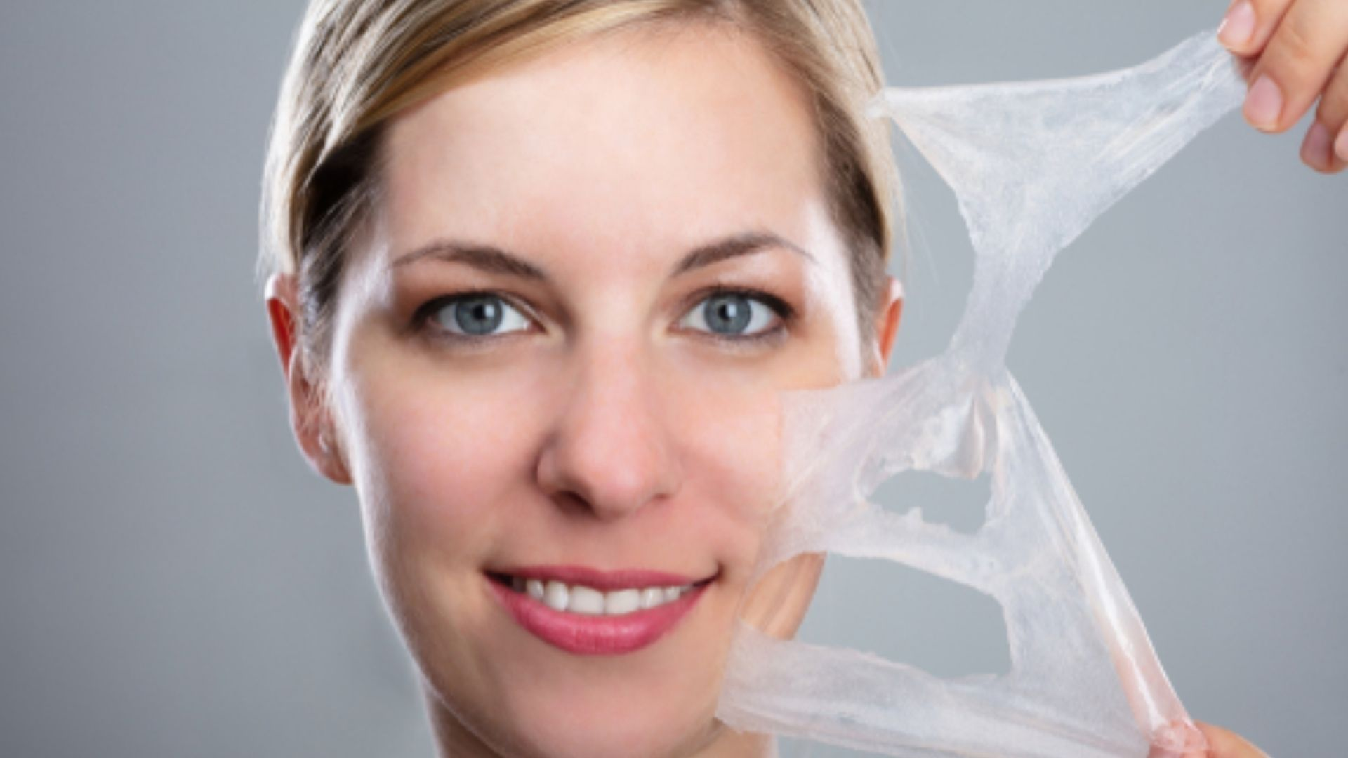 Peel trị sẹo