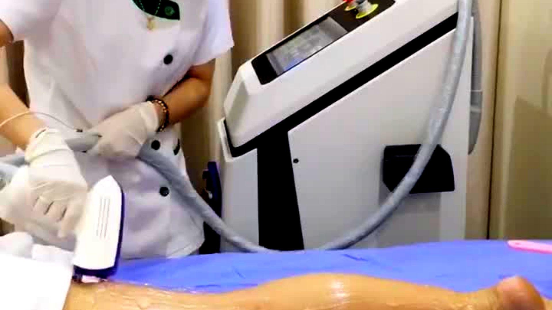 Triệt lông bằng máy công nghệ cao là gì