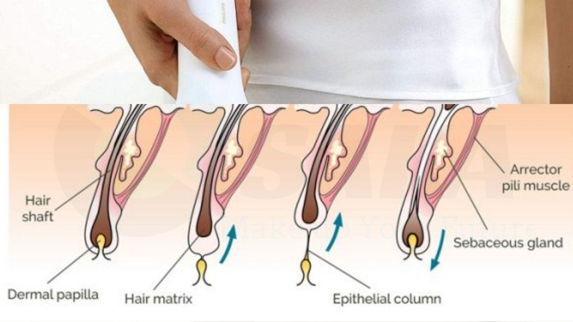 Máy triệt lông vĩnh viễn có hiệu quả không