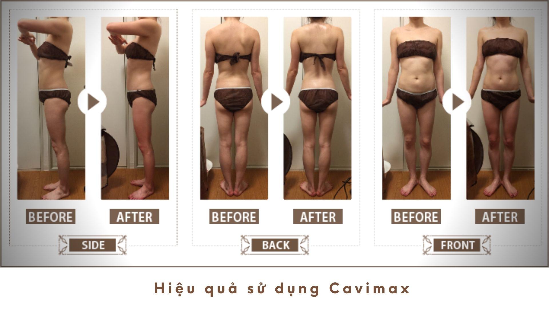 Hiệu quả sử dụng máy Cavimax