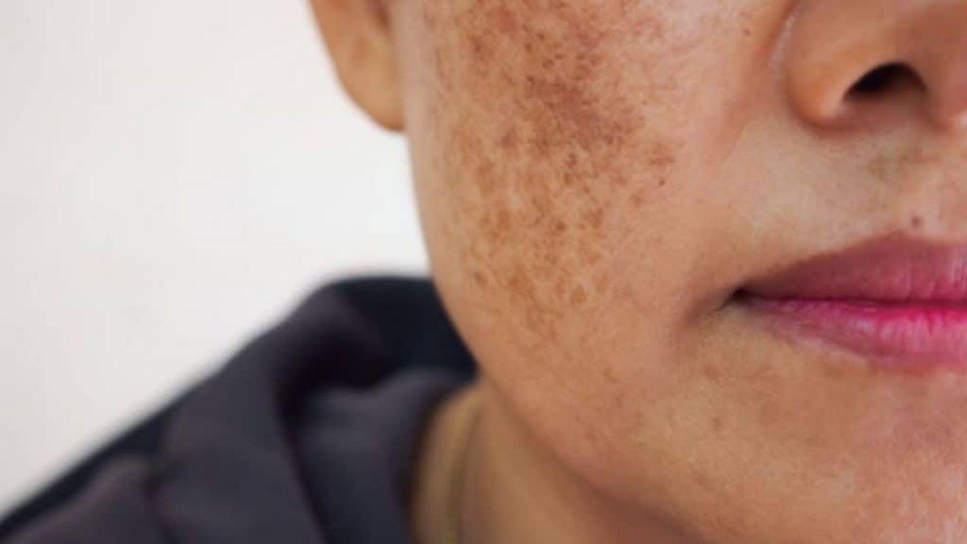 Tác dụng phụ biểu hiện trên da khi trị nám