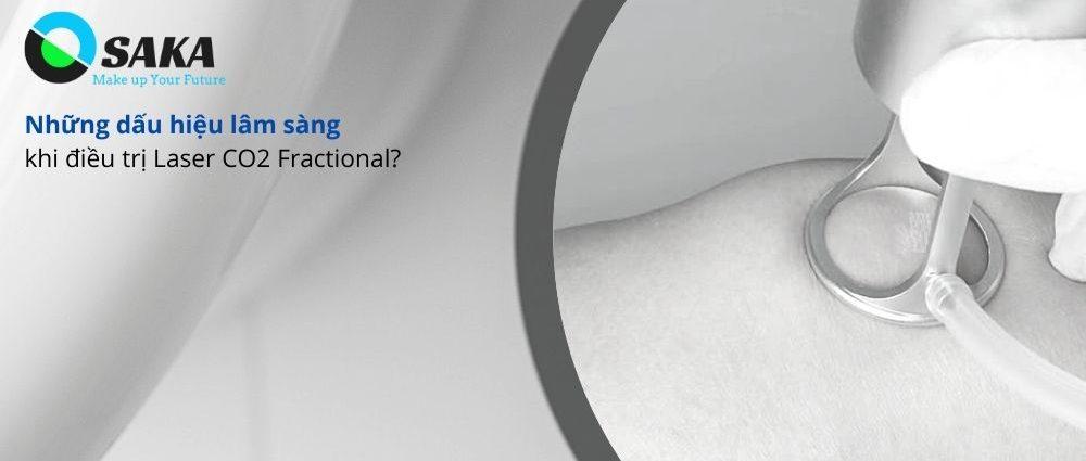 Biểu hiện lâm sàng điều trị Laser CO2 Fractional