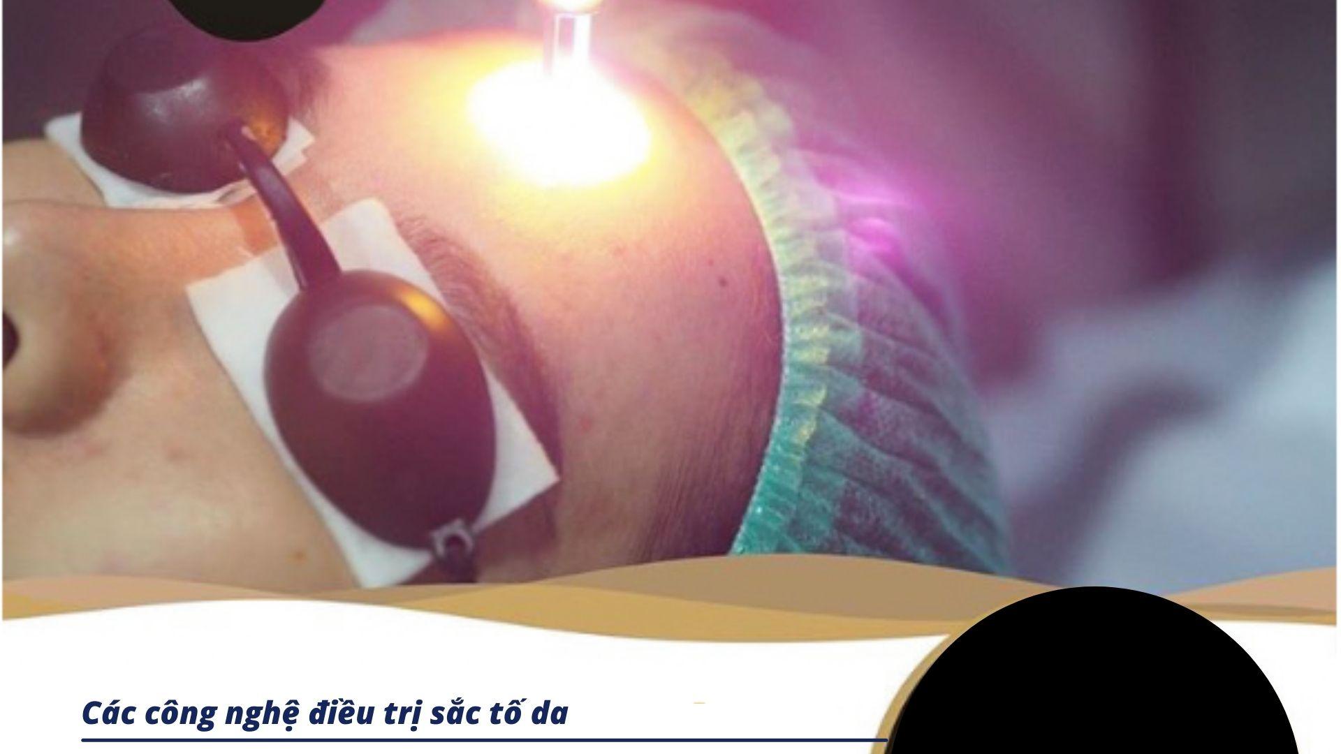 Các công nghệ laser điều trị sắc tố
