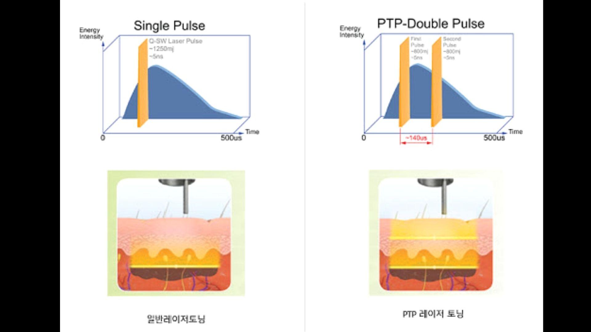 Cơ chế hoạt động Lucid Q PTP