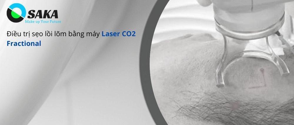 Điều trị sẹo bằng Laser CO2 Fractional