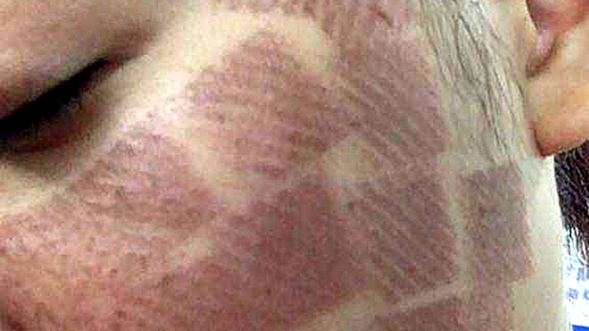 Tăng sắc tố da sau điều trị Laser CO2 Fractional