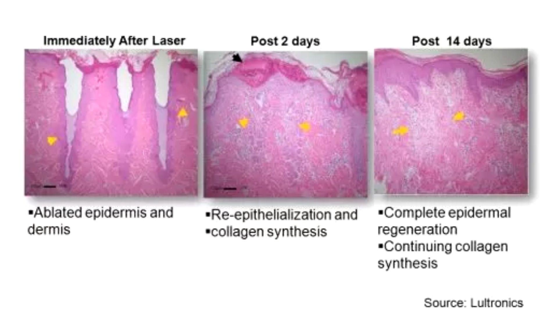Ứng dụng điều trị Laser CO2 Fractional