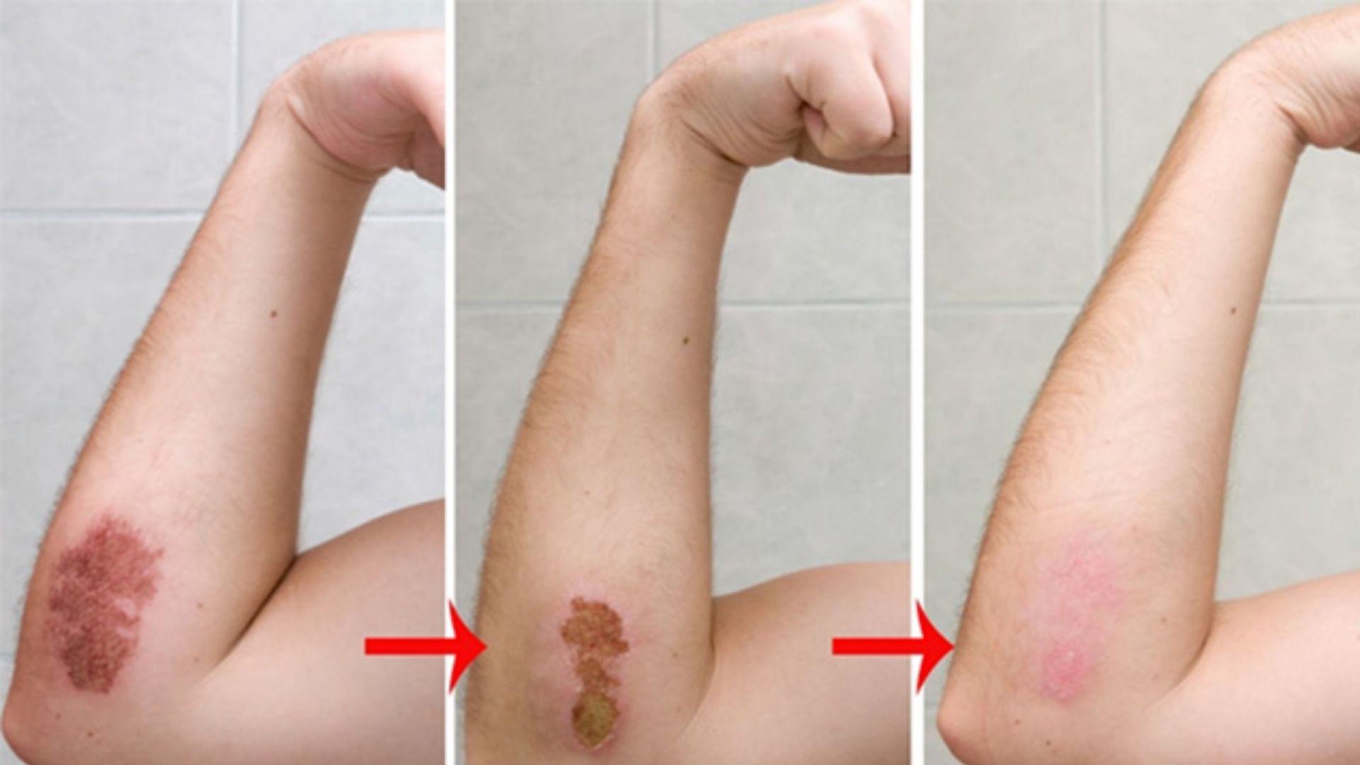 3 giai đoạn hình thành sẹo
