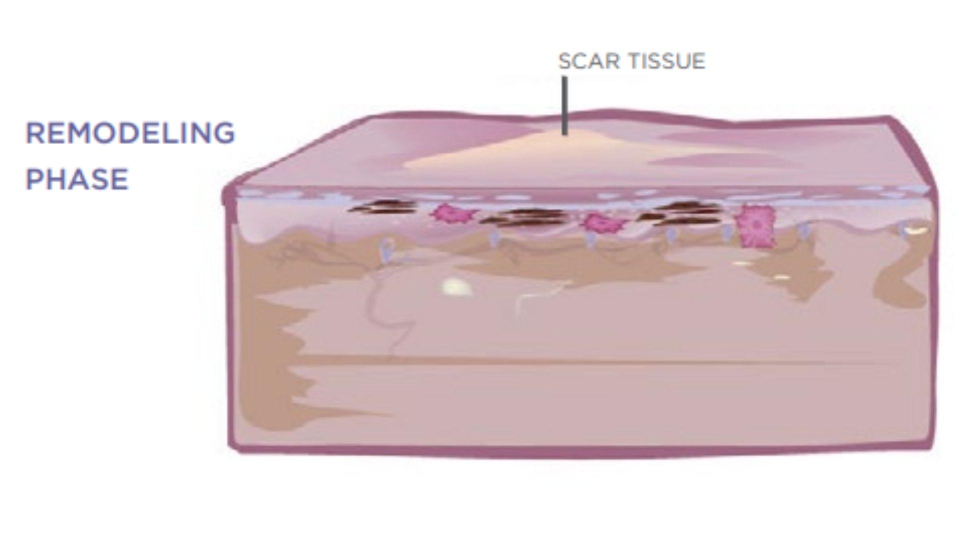 Giai đoạn khắc phục sẹo
