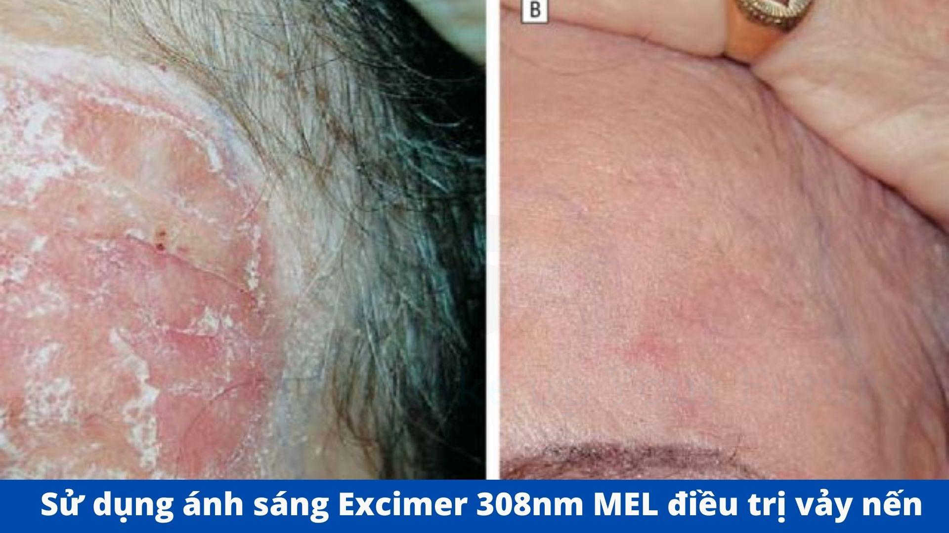 Sử dụng ánh sáng Excimer điều trị bệnh vảy nến