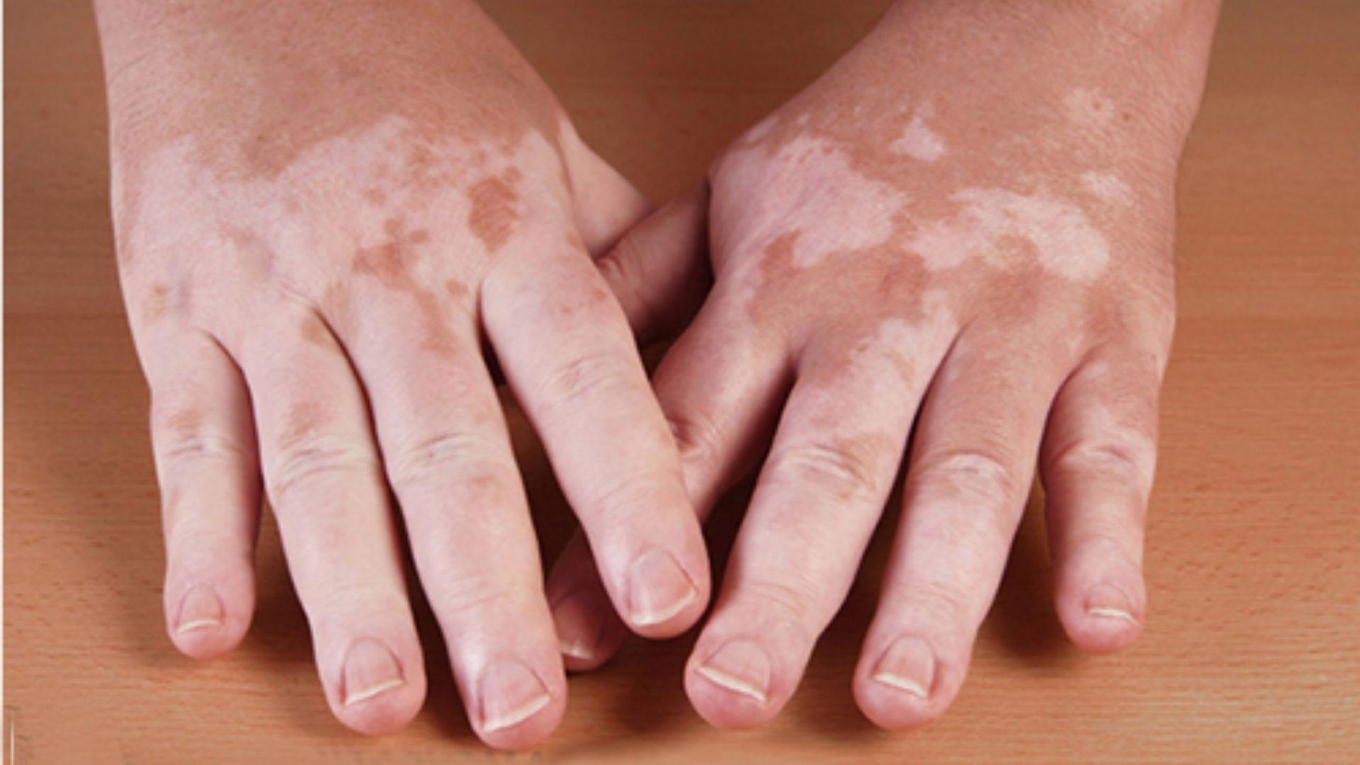 Tình trạng gây rối loạn sắc tố da